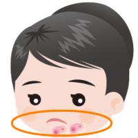顎・フェイスラインのニキビ跡