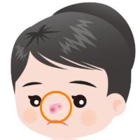 鼻のニキビ跡