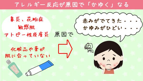 かゆみの原因3:アレルギー反応